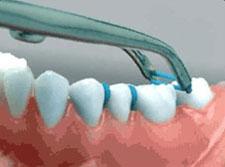 Types Of Appliances Gta Orthodontist Invisalign